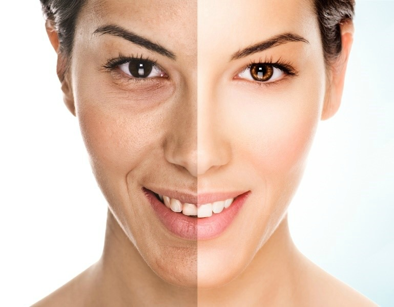 perfect skin treatment